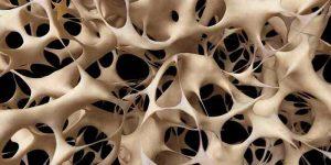 درمان پوکی استخوان (استئوپروز) زنان و مردان با دارو و تغذیه-compressed (1)