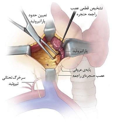آنچه در طی جراحی غده پاراتیروئید اتفاق خواهد افتاد