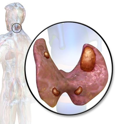 انواع جراحی غده پاراتیروئید برای درمان اختلالات آن